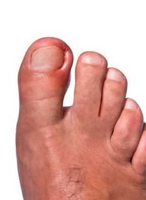 Chris Seuferling D P M Ingrown Toenails In Portland And Scappoose