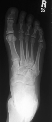 foot_x_ray_top.jpg